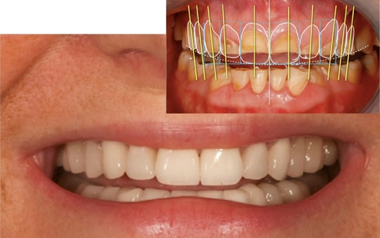 Cosmetic Dentistry & Aesthetic Restorative Dentistry