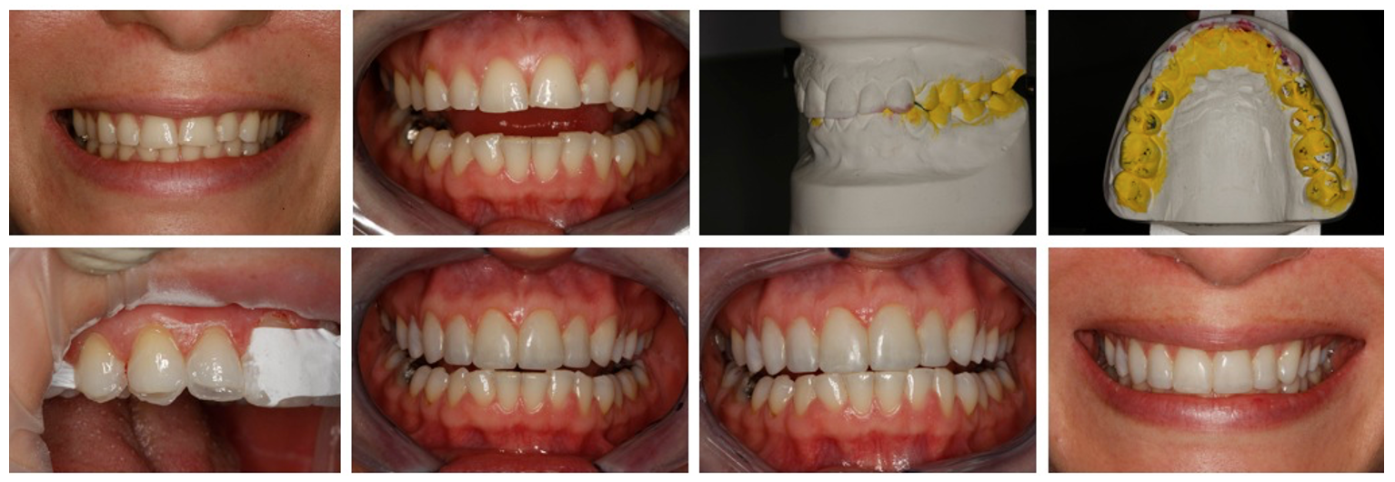 Comprehensive Dentistry - Advanced Occlusion and Treatment Planning